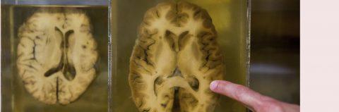 Científicos hallan por casualidad que gen de memoria actúa como virus