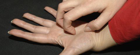 Dermatitis atópica, una enfermedad de la piel que genera depresión y ansiedad