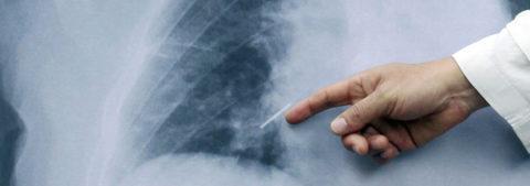 Estudiantes desarrollan sistema para detección de cáncer de pulmón